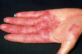 Different Types of Eczema | Different Types